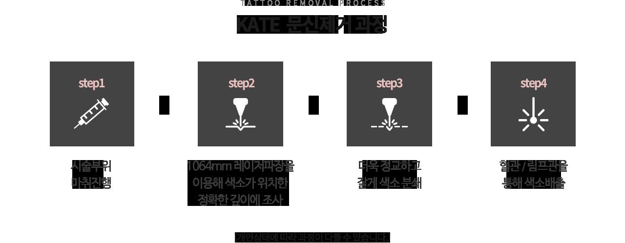 점/문신제거